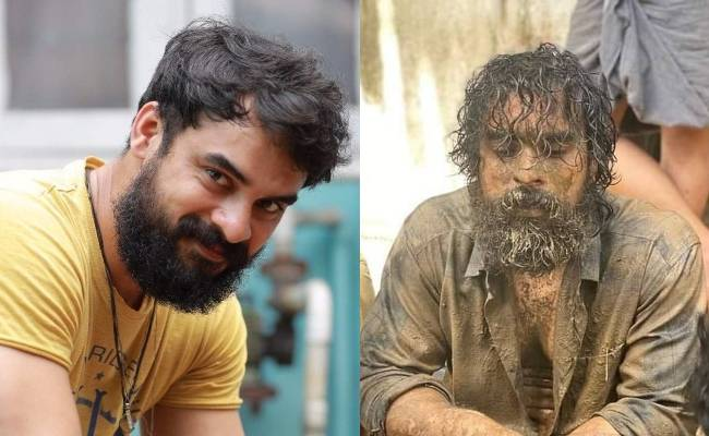 Tovino Thomas meets with accident admitted to ICU