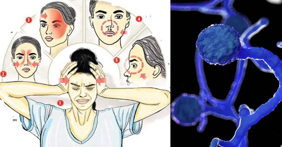 Centre issues advisory on Black Fungus in COVID-19 patients